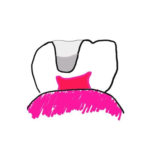 虫歯の仮詰め